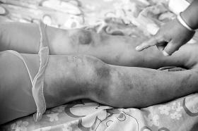 脱掉嫂子的胸罩_妻子内衣扣串位被疑偷情 遭老公暴打6小时(图)