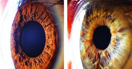 镜头拍摄的人眼结构-专家 激光矫正近视有后遗症