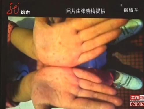 幼儿园 哈尔滨 视频/幼儿园一四岁女童疑遭体罚双手惨被针扎烂/+青...