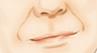 去除鼻唇沟纹