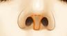 鼻小柱延长